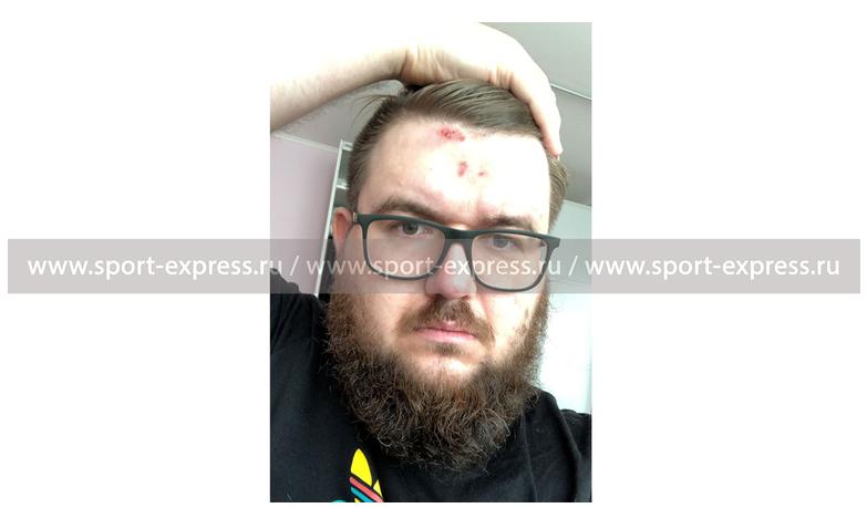 Болельщик «Спартака» получил влоб. Иобвинил Тарасова
