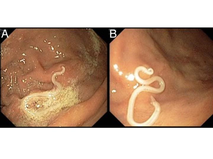 Жуткого червя извлекли врачи изжелудка португальца