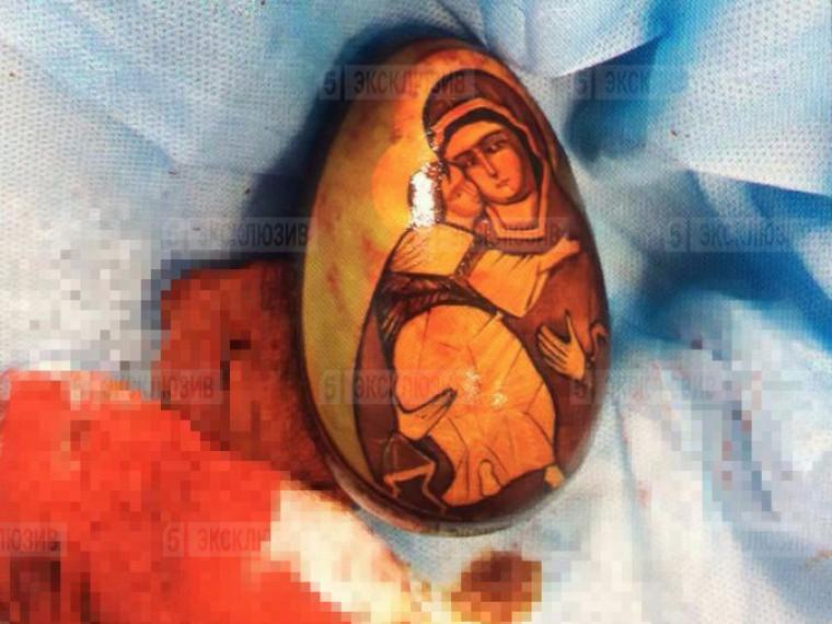 Петербуржец «снес» пасхальное деревянное яйцо спомощью врачей
