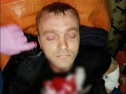 Пятый канал публикует фото мужчины, который зарезал двоих незнакомцев вАртеме
