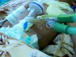 Врачи вУзбекистане нашли втеле годовалого ребенка 16 швейных игл
