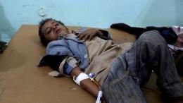 Жуткие кадры послеавиаудара вЙемене— там погибли 29 детей
