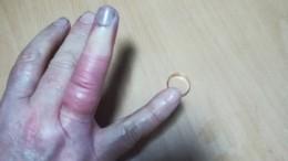 Тувинские спасатели помогли пожилой женщине сохранить палец идрагоценную память