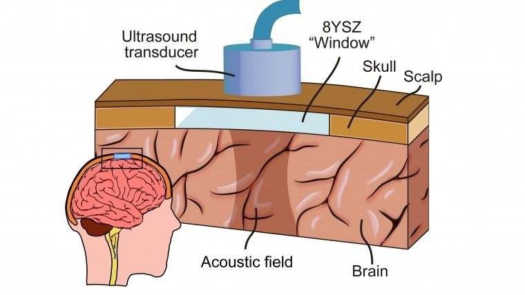 ВРоссии научились определять болезнь Паркинсона наранней стадии