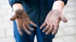 Видео: Ведущий Fox News завил, что 10 лет немыл руки
