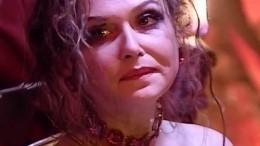 Актриса Рубинчик, едва несгоревшая заживо, перенесла очередную операцию