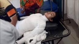 Школьницу вБангладеш публично сожгли после жалоб насексуальные домогательства