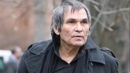 Один изхимических ожогов Бари Алибасова заживает неправильно— сын продюсера