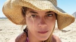 Звезда «Жестоких игр» поделилась снимком после курса химиотерапии