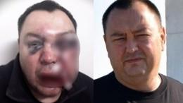 «Чистый заказ»: Избитый оппонент Иркутского губернатора рассказал, кого подозревает внападении насебя