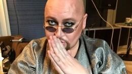 «Лучший образ!»: певец Шура выложил безумное фото двадцатилетней давности