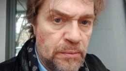 Люди искусства: побитый актер МХАТ показал видео драки схудруком