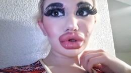 «Болгарская Барби» 17 раз увеличила губы, мечтая орекорде— фото результата