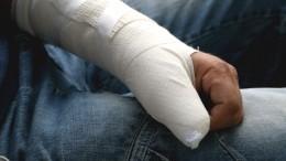 Пациент спереломом руки оказался винтересном положении вНовгородской области