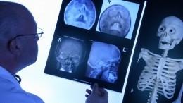 Немецкий онколог назвал самый эффективный метод борьбы сраком