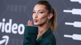 «Шедевр!»— самая красивая женщина вмире снялась топлес для журнала Vogue