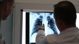 Мужчина пришел нарентген вбольницу Подмосковья, зная освоем диагнозе COVID-19