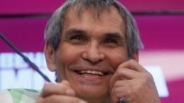Бари Алибасов впоследнее мгновение сбежал отпластического хирурга