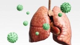 Выявлена ведущая ксмерти при коронавирусе аномальная патология