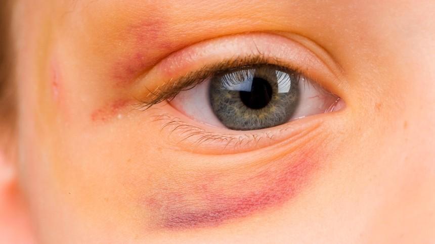 Уребенка вСочи выпал глаз после детских игр