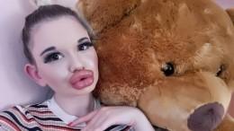Обладательница гигантских губ вновь закачала филлер вопреки опасениям врачей