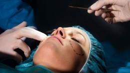 Как пластическая операция может повлиять насудьбу человека— объяснение экстрасенса