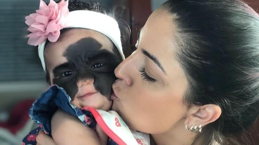 Фото: Как выглядит девочка с«пятном Бэтмена» после операции