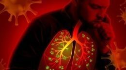 Фтизиатр спрогнозировал эпидемию туберкулеза после COVID-19