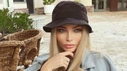 «Неначто было наращивать»: Шишкова призналась, что носила парик из-за облысения
