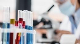 Тест-систему для определения коронавируса иего мутаций создали вРоссии