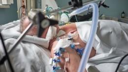 Несколько пациентов Никольской больницы умерли из-за прекращения подачи кислорода