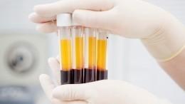 Российские врачи для лечения больных COVID-19 используют плазму вакцинированных доноров