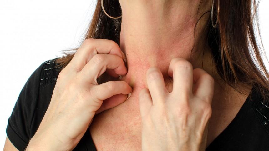 Кожный зуд назвали признаком опасного заболевания печени