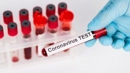 Роспотребнадзор презентовал уникальный тест для оценки степени заразности COVID