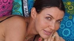 Эксперт: лишившаяся носа экс-жена Аршавина выйдет замуж зазаграничного богача