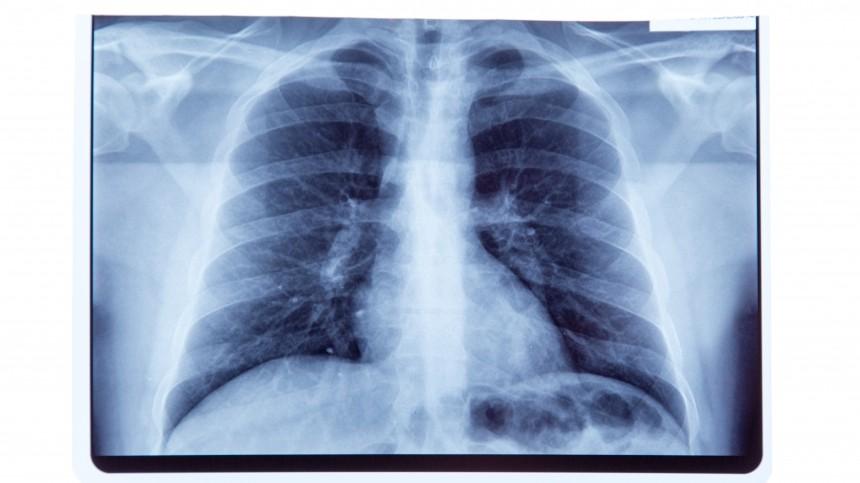 Российские ученые научили нейросеть выявлять COVID-19 порентгеновским снимкам