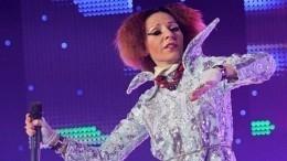 «Космомутация»: опухшую Агузарову заподозрили внеудачной пластике лица