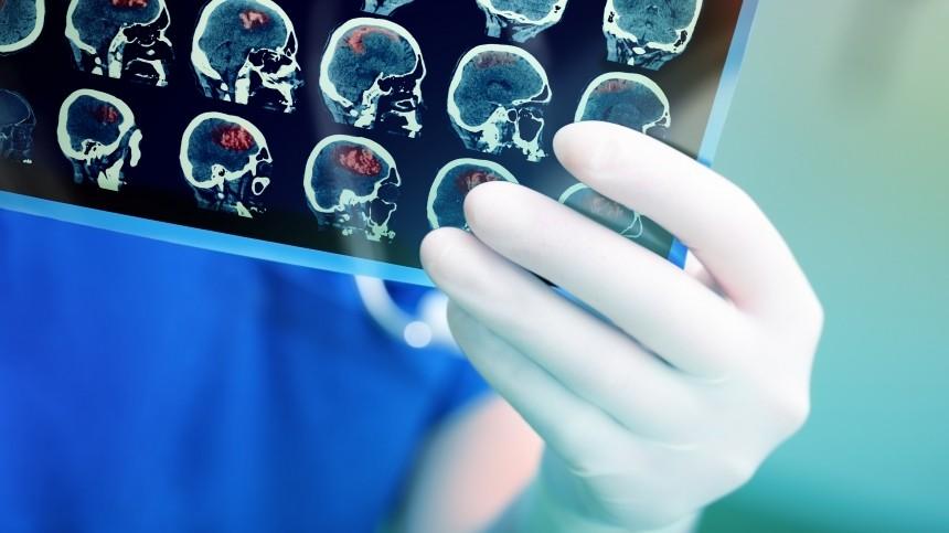 Удипломатов ивоенных США нашли повреждения мозга— это опасно?