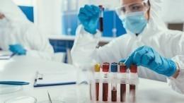 ВРоссии начали производить иммуноглобулин откоронавируса изкрови переболевших