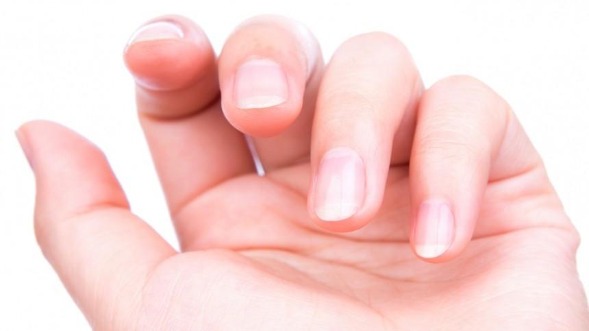 Как определить острую нехватку витамина B12 поизменению ногтей?