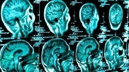 Ученикам «Кванториума Дона» показали, как российские ученые исследуют мозг