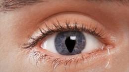 Что такое «змеиные глаза» икак это лечат улюдей— ответы врача