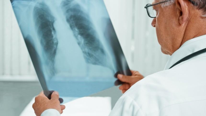 Мясников предупредил ориске рака легких упереболевших коронавирусом