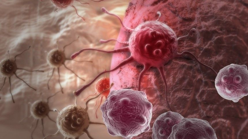 Странный блик: как пофотографии определить редкую форму рака