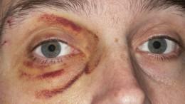 Покупателю разбили вкровь лицо вподмосковном «Магните» из-за подозрения вкраже