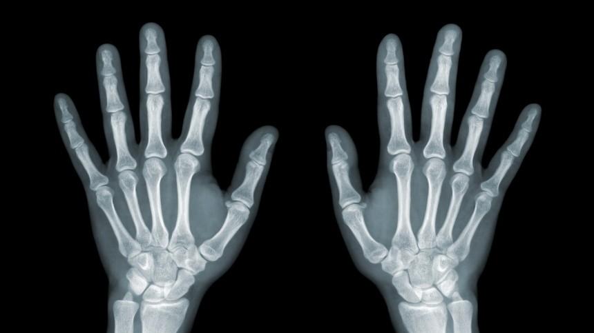 Петербургские хирурги представили новейший метод лечения туннельных синдромов